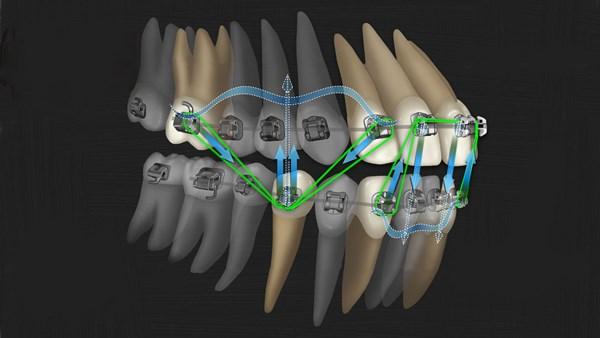 Аспекты перестройки костной ткани при перемещении зубов