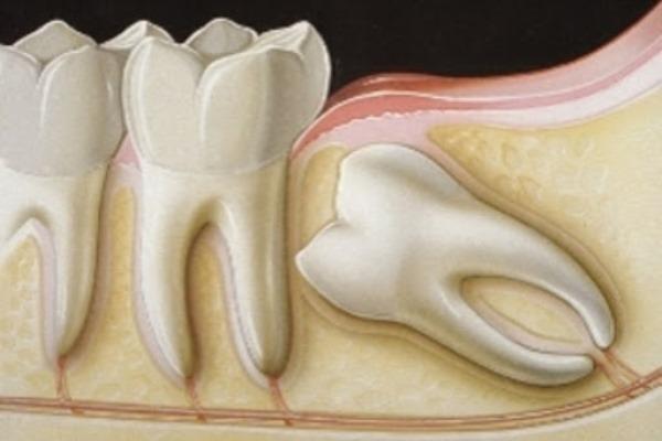 Периодонтит интактного зуба что это значит