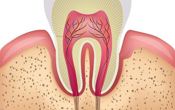 Вскрытие полости интактного зуба
