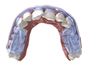Аквасплинт стоматология