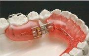 Ортодонтический аппарат механического действия