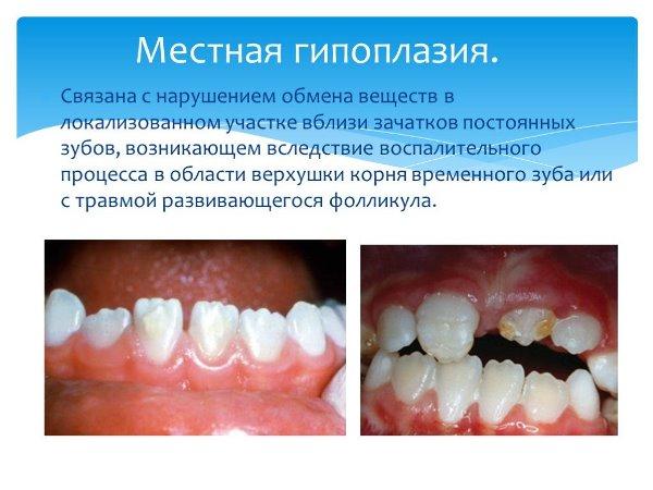 Зубы Тернера