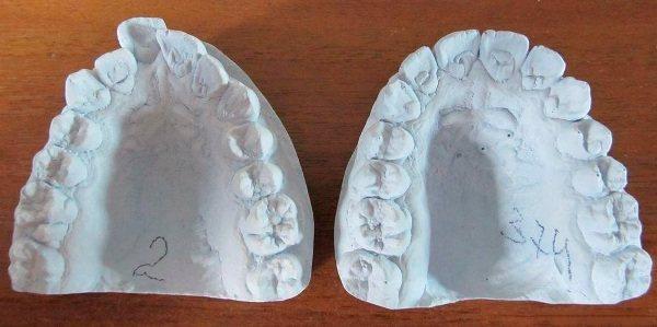 Снятие слепка зубов для брекетов