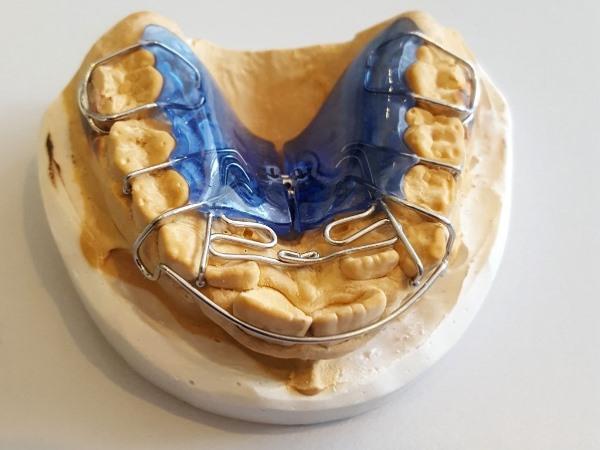 Как работает Биоблок в ортодонтии