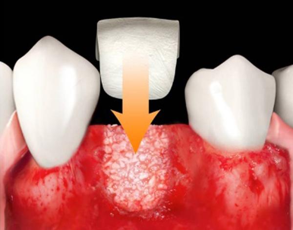Пластины lamina в стоматологии