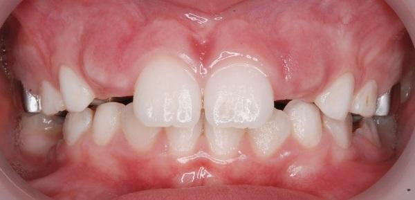 Персистентные зубы это