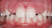 Что такое персистентный зуб