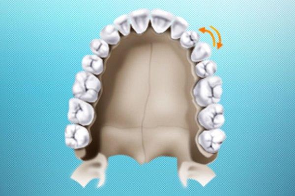 Причины формирования транспозиции зуба