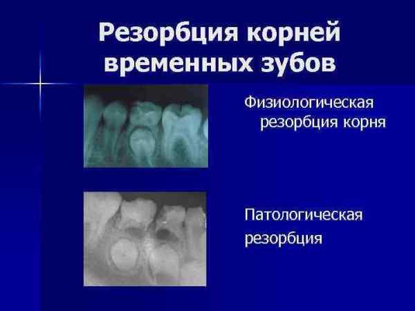 Физиологическая резорбция корней временных зубов