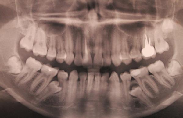 Нужно ли удалять импактные зубы