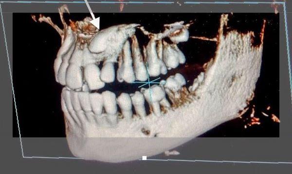Импактные зубы мкб 10