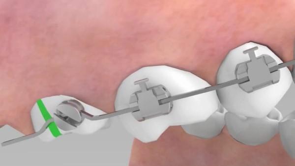 Показания к использованию кнопок в ортодонтии