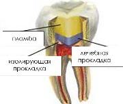 Прокладки для зубов