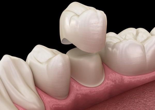 Низкая коронка зуба