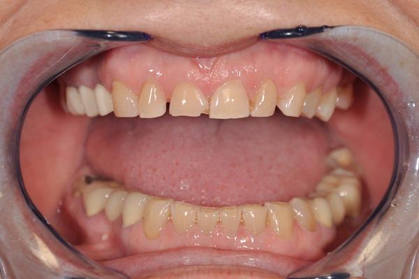 Требования к материалам при протезировании зубов с низкими коронками