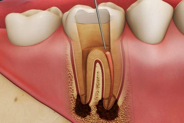 Причины развития резорбции корня зуба