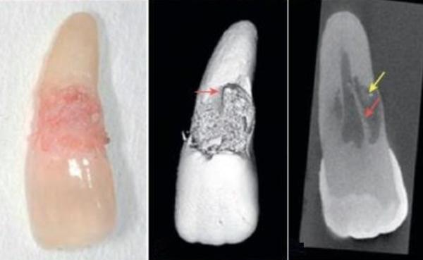 Признаки патологической резорбции корней временных зубов