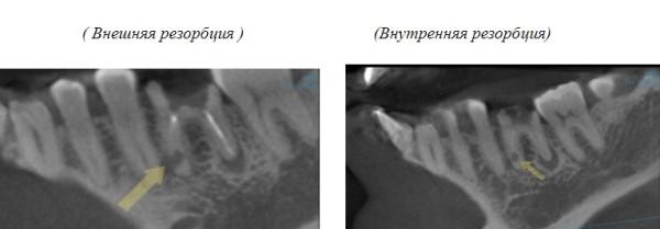 Типы резорбции корней временных зубов