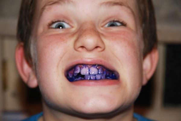 Состав и свойства индикатора зубного налета
