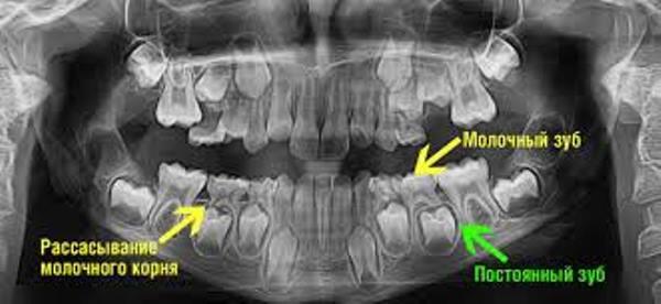 Резорбция корней временных зубов