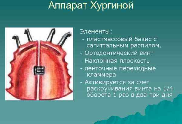 Аппарат хургиной в ортодонтии