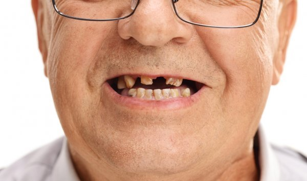 Старческая потеря зубов