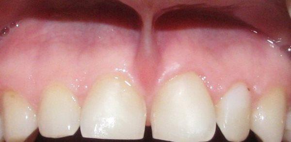 Пластика уздечки верхней губы лазером цена