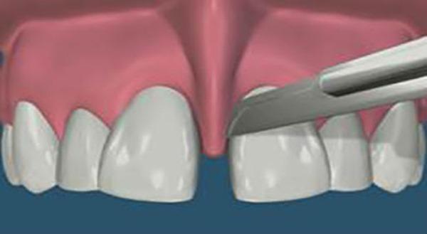 Пластика уздечки верхней губы у детей