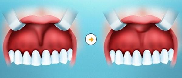 Осложнения после пластики уздечки верхней губы