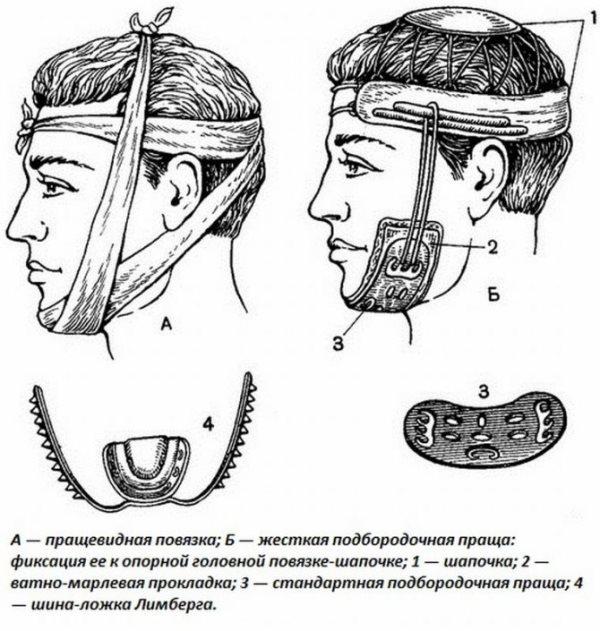 Пращевидная повязка на челюсть