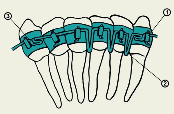 Ортодонтический аппарат бегга