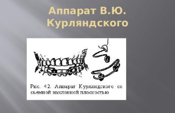 Изготовление аппарата Курляндского