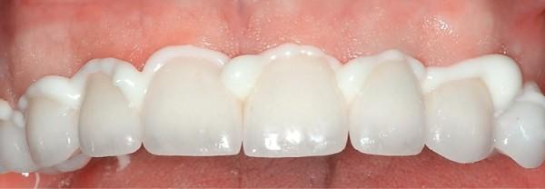 Цемент фуджи 1 в стоматологии