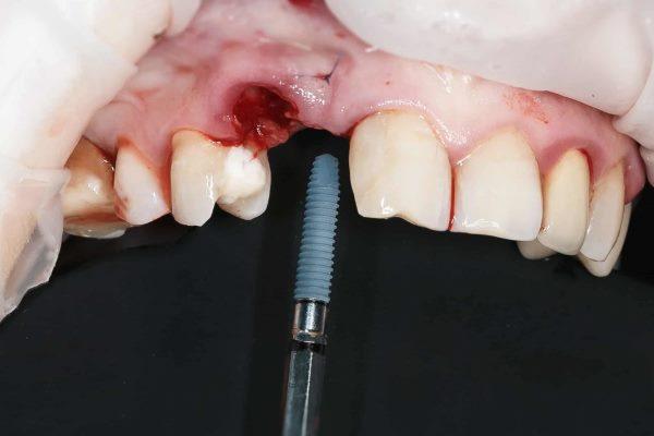 Образовался свищ после имплантации зуба