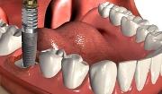 Установка импланта сразу после удаления зуба недостатки