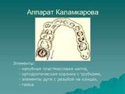 Аппарат Каламкарова особенности