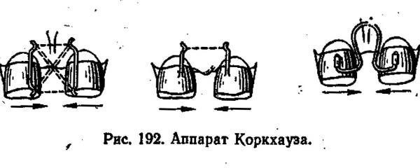 Принцип действия аппарата Коркгауза