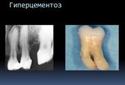 Гиперцементоз корня зуба