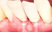 Свищ после имплантации зубов причины