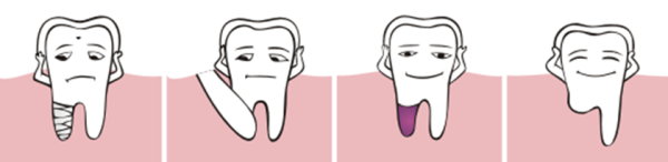 Ампутация корня зуба показания