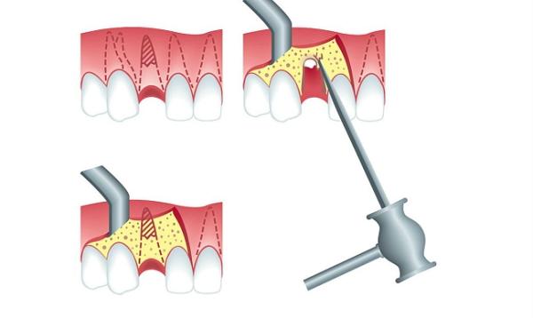Показания к ампутации корня зуба