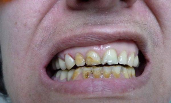 Последствия кислотного некроза зубов