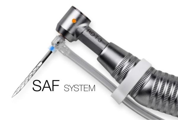 Преимущества использования SAF системы в эндодонтии