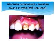 Зубы Тернера лечение
