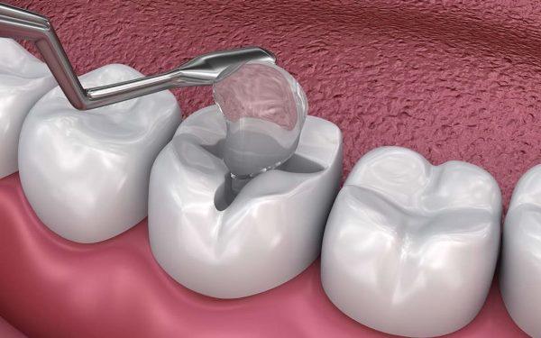 Восстановление жевательных зубов