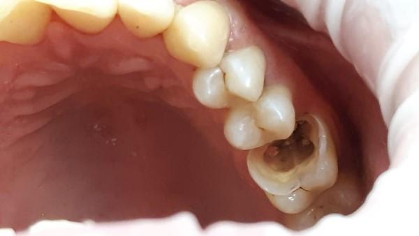 Реставрация жевательной группы зубов