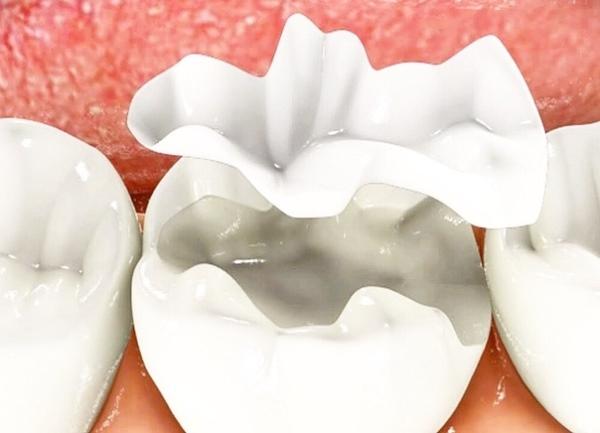 Причины разрушения жевательных зубов и техники реставрации