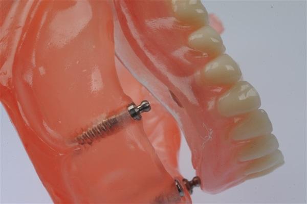 Характеристики протезов Perflex