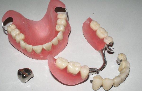 Как понять и какие лучше съемные или несъемные зубные протезы