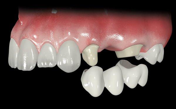 Какие зубные протезы лучше съемные или несъемные